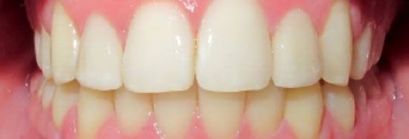 Orthodontic Before/After