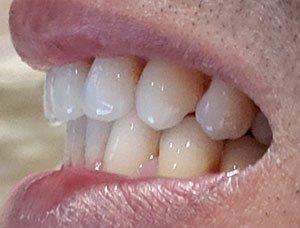 , Smile Express Screening, Smile Studio Orthodontics, Smile Studio Orthodontics